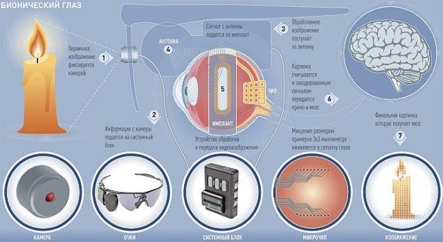 Бионический глаз позволит абсолютно слепым людям видеть мир